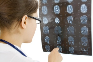 טיפול בפגיעת ראש